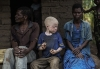 MALAWI-ALBINISM-FEATURE